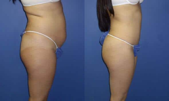 patient-12470-tummy-tuck-abdominoplasty-before-after-2
