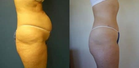 patient-12477-tummy-tuck-abdominoplasty-before-after