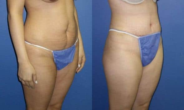 patient-12480-tummy-tuck-abdominoplasty-before-after