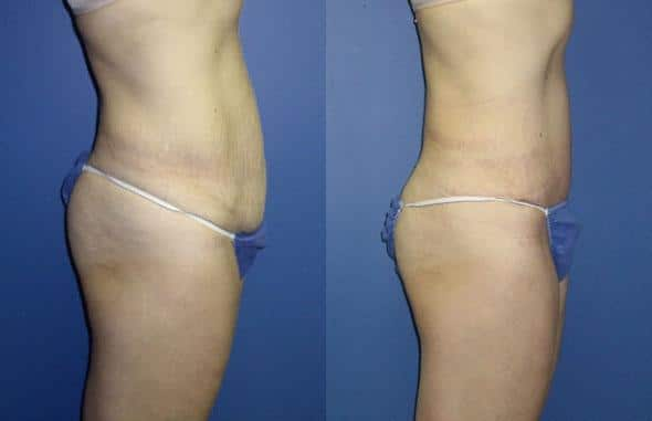 patient-12485-tummy-tuck-abdominoplasty-before-after