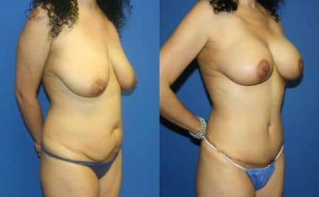 patient-12493-tummy-tuck-abdominoplasty-before-after-1