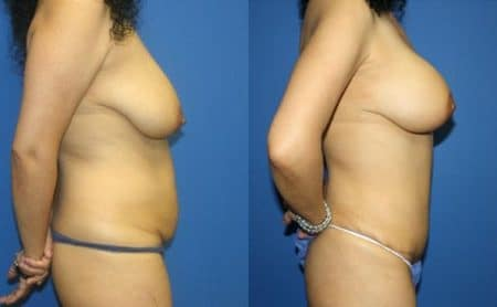 patient-12493-tummy-tuck-abdominoplasty-before-after-2