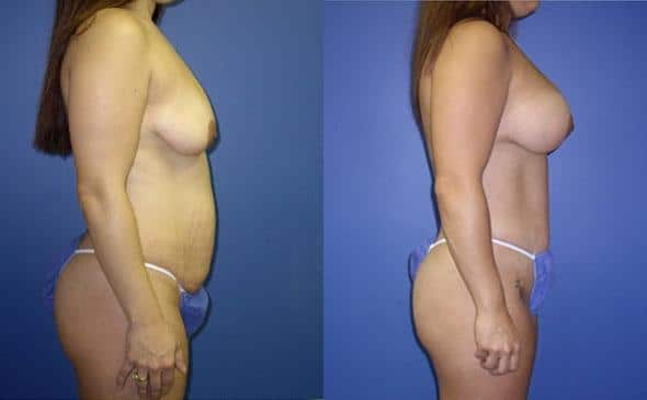 patient-12500-tummy-tuck-abdominoplasty-before-after-1