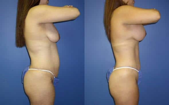patient-12500-tummy-tuck-abdominoplasty-before-after-2
