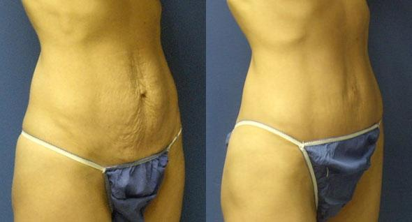 patient-12507-tummy-tuck-abdominoplasty-before-after-1