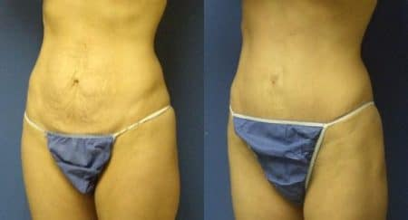 patient-12507-tummy-tuck-abdominoplasty-before-after-2