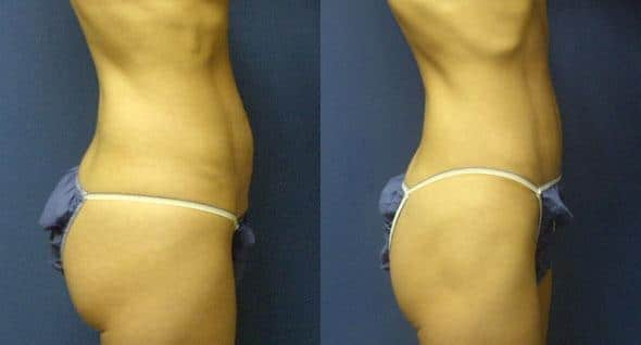 patient-12507-tummy-tuck-abdominoplasty-before-after-3