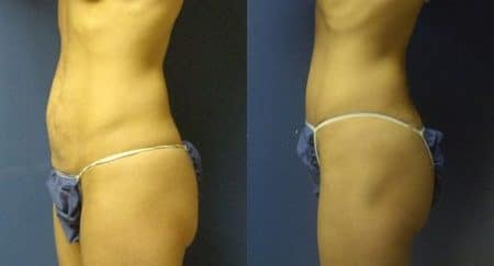 patient-12507-tummy-tuck-abdominoplasty-before-after-4