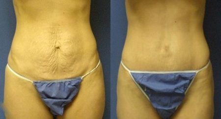 patient-12507-tummy-tuck-abdominoplasty-before-after