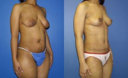 patient-12518-tummy-tuck-abdominoplasty-before-after-1