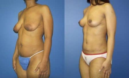 patient-12518-tummy-tuck-abdominoplasty-before-after-2