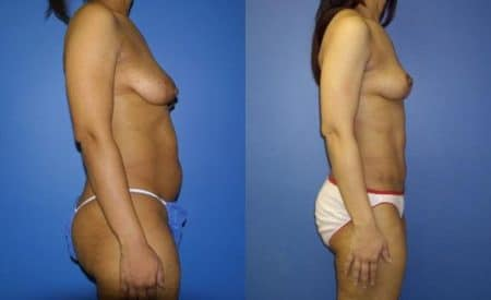 patient-12518-tummy-tuck-abdominoplasty-before-after-3