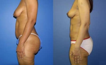 patient-12518-tummy-tuck-abdominoplasty-before-after-4