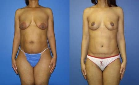 patient-12518-tummy-tuck-abdominoplasty-before-after