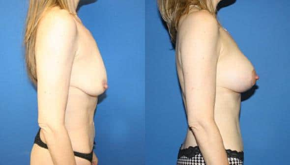 patient-12529-tummy-tuck-abdominoplasty-before-after-1