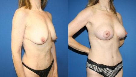 patient-12529-tummy-tuck-abdominoplasty-before-after