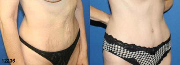 patient-12534-tummy-tuck-abdominoplasty-before-after-1
