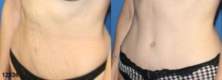 patient-12534-tummy-tuck-abdominoplasty-before-after-2