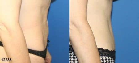 patient-12534-tummy-tuck-abdominoplasty-before-after-3