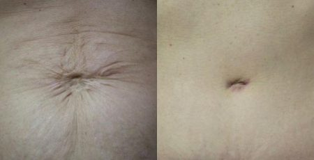 patient-12545-tummy-tuck-revision-before-after-1
