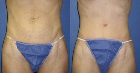patient-12545-tummy-tuck-revision-before-after
