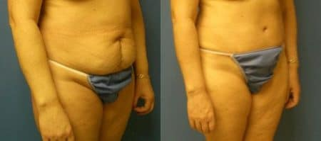 patient-12552-tummy-tuck-revision-before-after-1