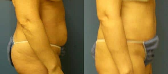 patient-12552-tummy-tuck-revision-before-after-2
