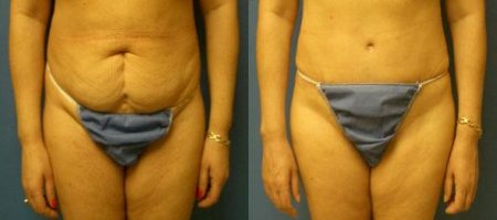 patient-12552-tummy-tuck-revision-before-after