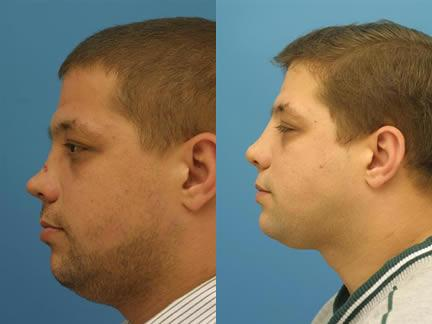 patient-12562-nasal-fracture-repair-before-after-1
