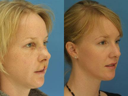 patient-12571-nasal-fracture-repair-before-after-1