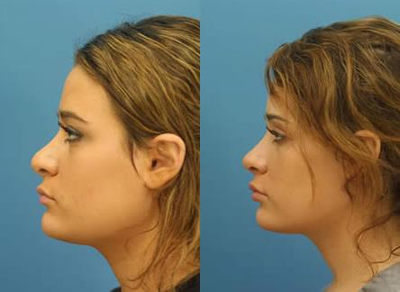 patient-12584-revision-rhinoplasty-before-after