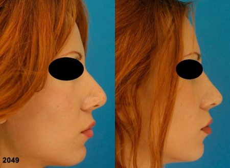 patient-12587-revision-rhinoplasty-before-after-1