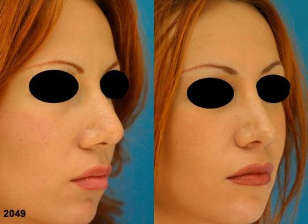 patient-12587-revision-rhinoplasty-before-after