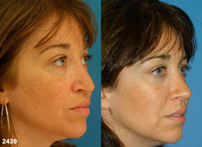 patient-12592-revision-rhinoplasty-before-after-1