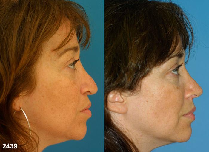 patient-12592-revision-rhinoplasty-before-after-2