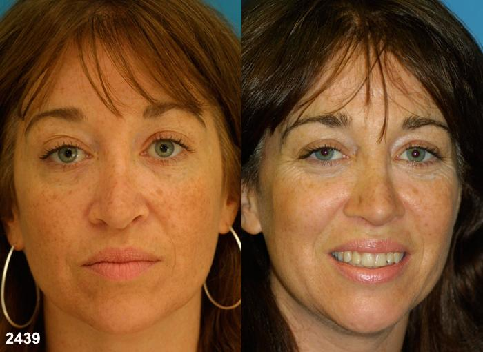 patient-12592-revision-rhinoplasty-before-after