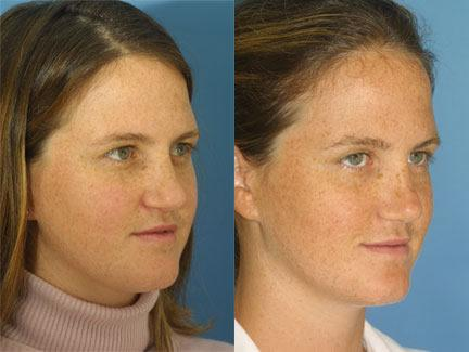 patient-12599-revision-rhinoplasty-before-after-1
