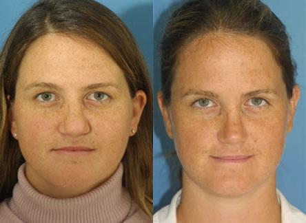 patient-12599-revision-rhinoplasty-before-after