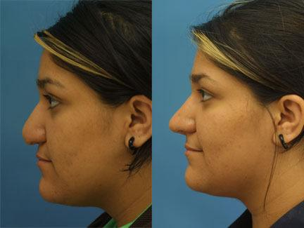 patient-12604-revision-rhinoplasty-before-after-1