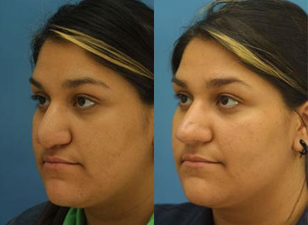 patient-12604-revision-rhinoplasty-before-after