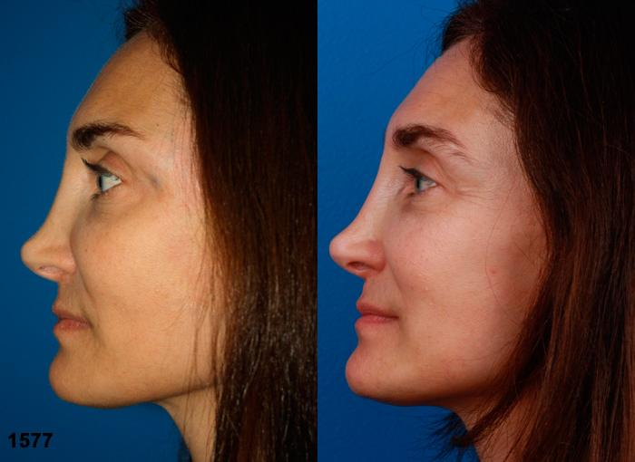 patient-12609-revision-rhinoplasty-before-after-1