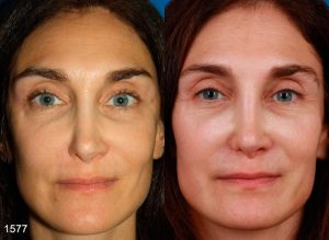 Revision rhinoplasty before and after by Dr. Miller in NYC facial plastic surgery office.