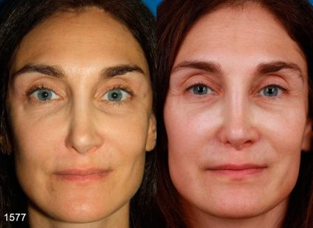 patient-12609-revision-rhinoplasty-before-after