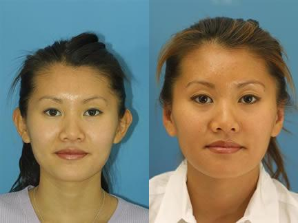 patient-12620-otoplasty-ear-surgery-before-after-1