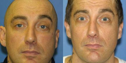 patient-12628-otoplasty-ear-surgery-before-after-1