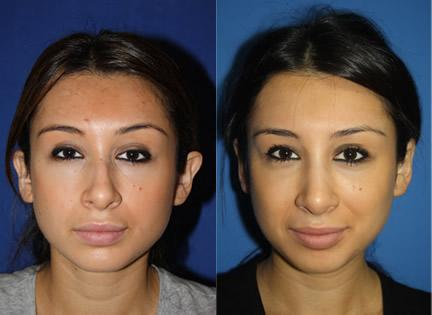 patient-12648-otoplasty-ear-surgery-before-after (1)