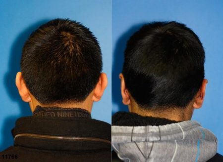 patient-12653-otoplasty-ear-surgery-before-after-1