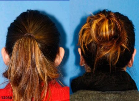 patient-12658-otoplasty-ear-surgery-before-after