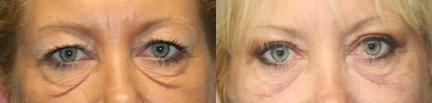 patient-12675-laser-treatments-before-after