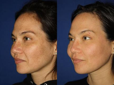 patient-12678-laser-treatments-before-after-1-2